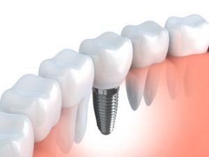 3D image of dental implants